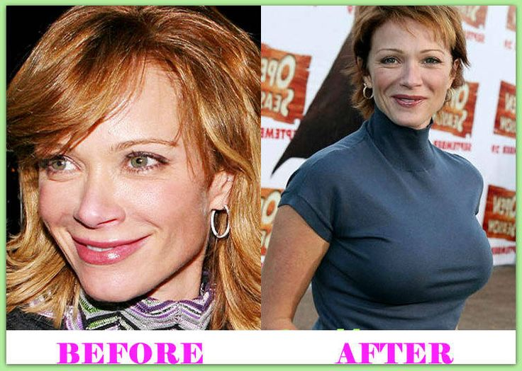 Pin On Celebrities Plastic Surgery Before And After