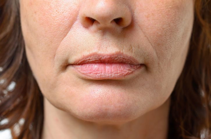 Testez cette crème qui atténue les rides autour de la bouche noté 3 - 3 votes La peau du contour des lèvres peut vite se marquer et les rides prématurées dans cette zone ne peuvent définitivement pas être ignorées vu qu'elles se concentrent dans une zone centrale et qui attire particulièrement le regard. Le soleil...