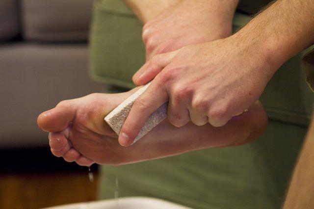 Crakedskinonhands Dry Skin Dry Skin On Feet Moisturizer For Dry Skin