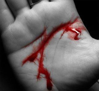 Parar una hemorragia en tan solo 10 segundos