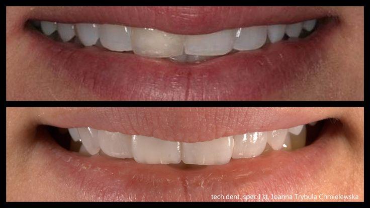 ultra cienke licówki korygujące kształt i przebarwienia na zębach własnych