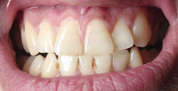 Vzniká postupne a dokáže zničiť vaše krásne zuby. Zubný kameň je veľmi nepríjemnou záležitosťou. Stačí podceniť správne umývanie zubov a hneď sa na ne usadí zubný povlak so škodlivými baktériami, ktoré sa podieľajú na vzniku, okrem iného, aj spomínaného zubného kameňa.