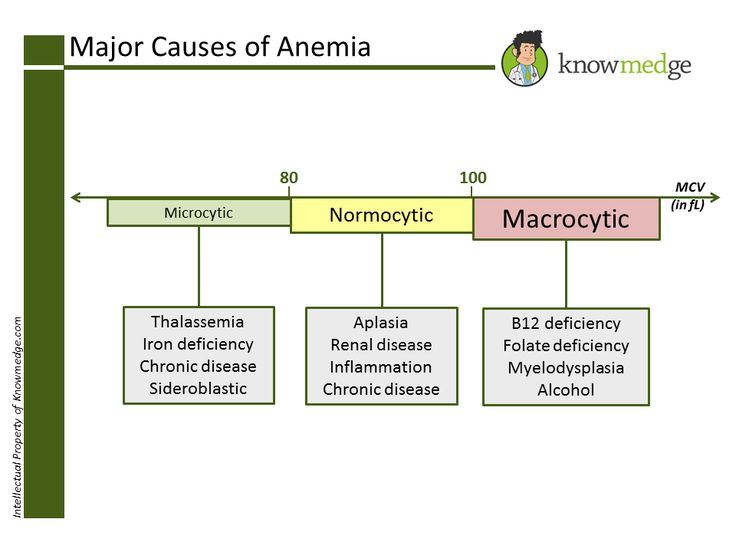 Major Causes of Anemia based on MCV