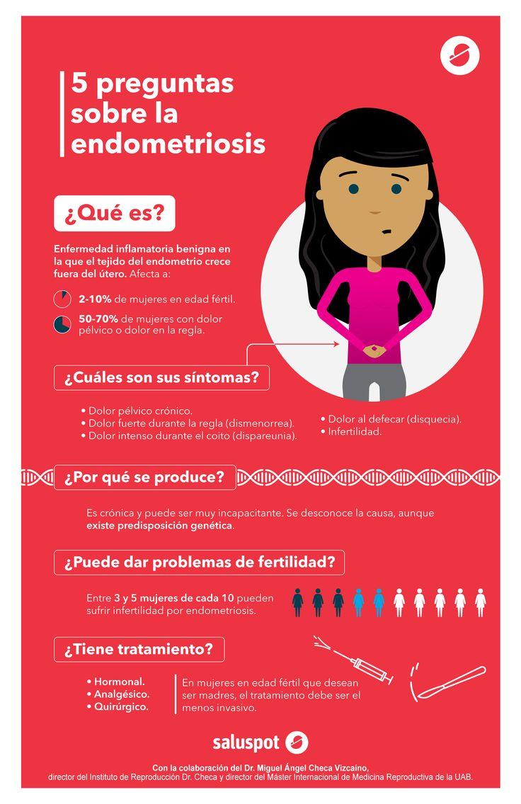5 preguntas sobre la endometriosis (infografía)