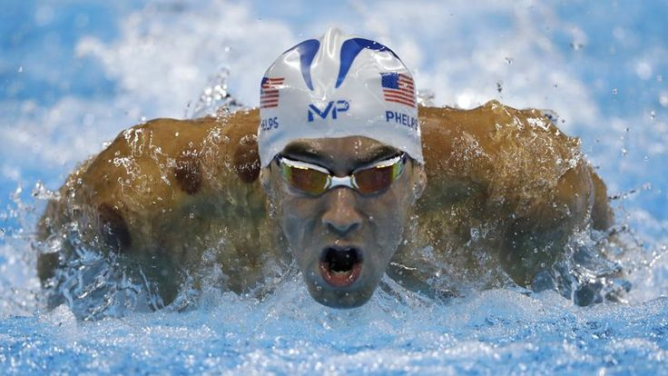 La technique des ventouses, utilisée par Michael Phelps, est très ancienne et…