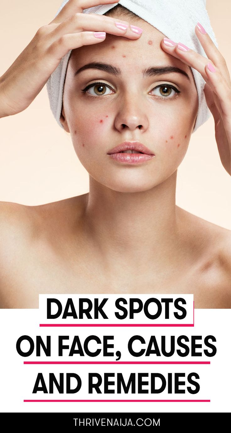 What Are The Causes Of Dark Spot On Face? And How to Get Rid of It