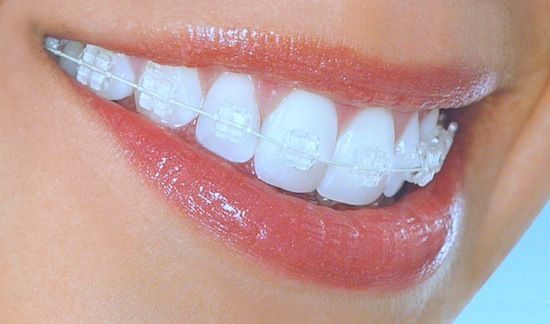 Clear braces bands- have braces again ugh but clear makes them less noticeable verses hot pink or black even