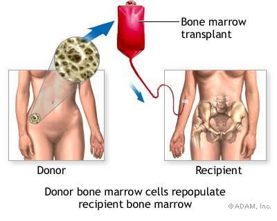 Hematopoietic Stem Cell Transplantation (HSCT): HSCT is the primary form of treatment for many patients with blood disorders; it involves the transplantation of healthy blood-forming stem cells from the bone marrow, circulating blood, or umbilical cord blood to replace damaged, disease-causing cells in recipients. Read more on our blog: http://www.lgmpharma.com/blog/tag/hematopoietic-stem-cell-transplantation/