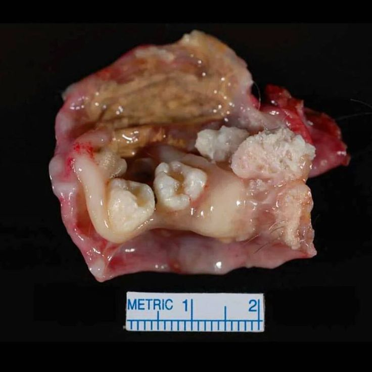 A Dermoid Cyst or teratoma in the ovary typically contains a diversity of tissues including hair, teeth, bone, thyroid, etc. Teratomas arise from germ cells, which are the cells that go on to later develop into a person's gametes (such as sperm and...