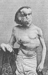 Google Image Result for http://upload.wikimedia.org later after Joseph's death scientists figured out his disease was neurofibromatosis which is when you get a lot of tumors on the nerve usually less severe than the elephant man's he still lived a great life