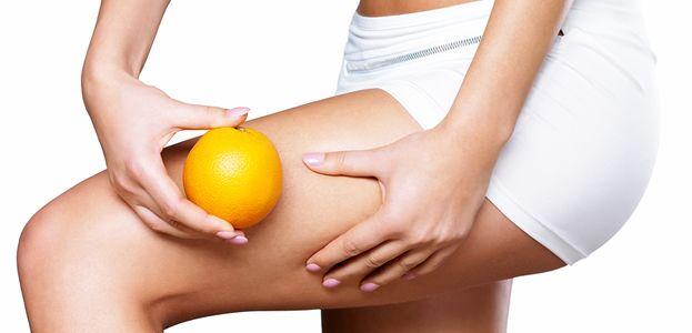 """La celulitis es un problema estético que se caracteriza por la alteración de la superficie cutánea, especialmente de las piernas, que se vuelve irregular y se conoce popularmente como """"piel de naranja"""". Afecta con mayor frecuencia a las mujeres, pues tiene dependencia hormonal. La grasa"""