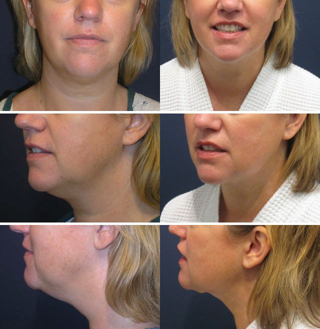 This woman in her mid-40's hated her double chin. She underwent neck liposuction with dramatic improvement in neck contour and her facial appearance. She is photographed 7 months after surgery.