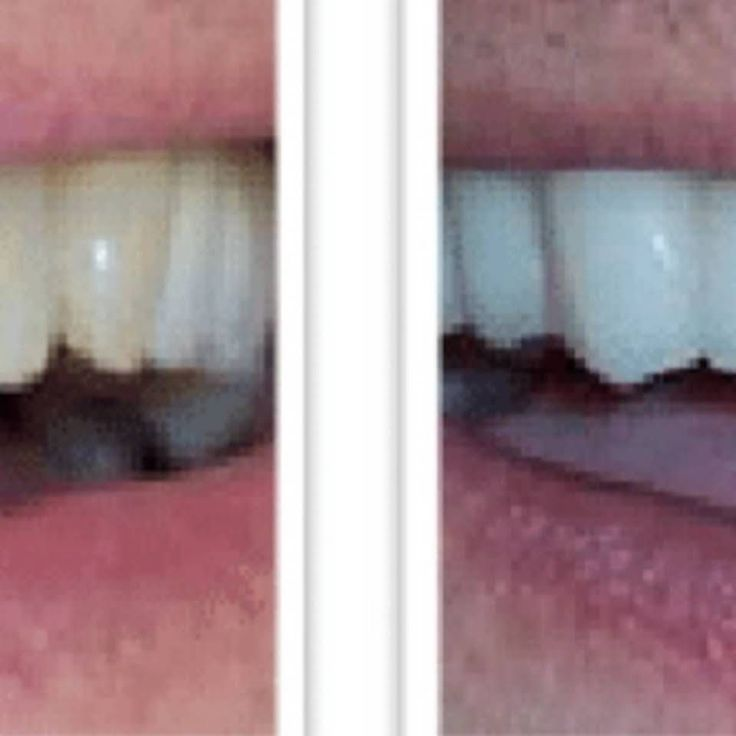 Dentalimplantsplantationmixed tooth extraction images
