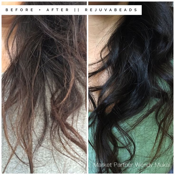 Before and After Rejuvabeads by Monat. One application