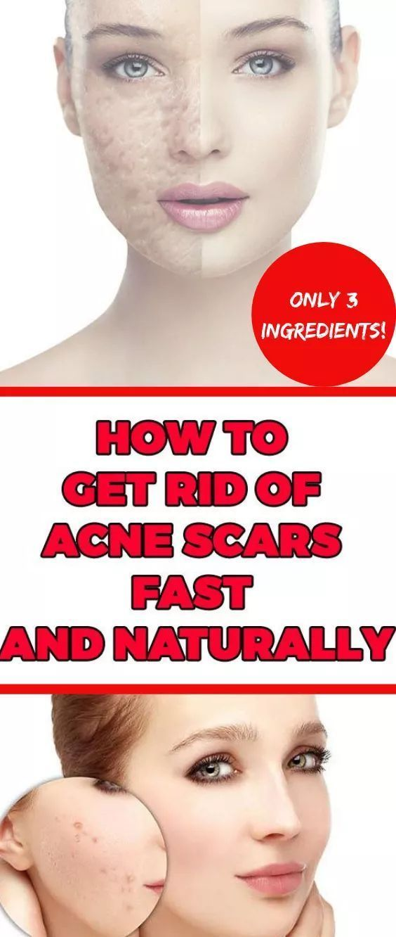 How To Get Rid Of Acne Scars Fast And Naturally – …