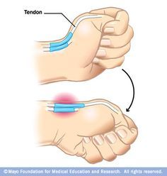 Finkelstein test - Abductor pollicis longus and extensor pollicis brevis