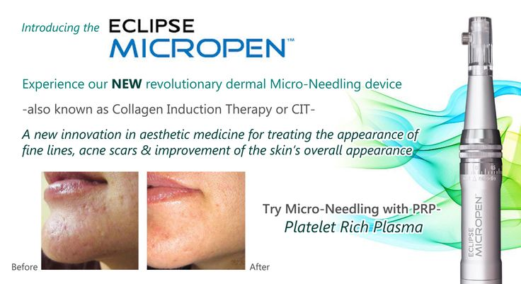 Discover Hollywood's Hottest Secret: Micro-needling! We are now also offering the #Platelet Rich #Plasma #facial & injections! Learn more about the Secret of the Stars. #microneedling #micro-needling #PRP #micropen