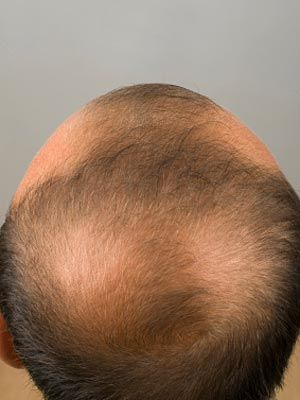Different Types of Alopecia  Alopecia is the medical term for hair loss, and there are two main types: alopecia areata and androgenic (androgenetic) alopecia. Alopecia may cause hair loss only on the scalp or all over the body. It may result in thinning hair, patches of hair loss, some balding, or total baldness, and it may be permanent or temporary. There are numerous causes, including genetics. Talk to your doctor about possible treatments.