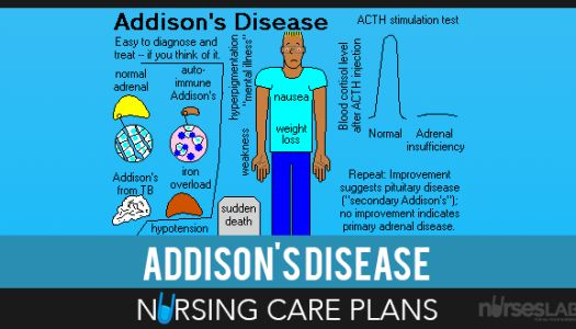 addison s disease bio 2 There is little biographical information about jane austen's life except the few  her cause of death as addison's disease,  2 1–20 gay, penny jane austen.