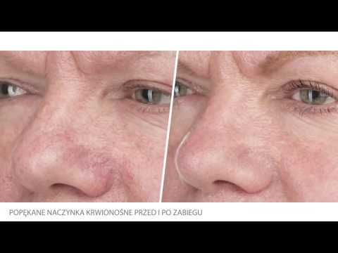 Leczenie trądziku Zamykanie naczyń krwionośnych