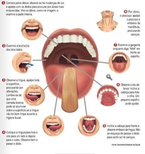 Você sabia que a combinação de cigarro e álcool aumenta em 150 vezes as chances de se ter algum tipo câncer de boca ?!    Este tipo de câncer tem como principal sintoma o surgimento de feridas na boca que demoram mais de 2 semanas para cicatrizar. Dificuldades de mastigar, falar e engolir, bem como linfadenomegalia cervical (caroço no pescoço) são sinais de câncer de boca em estágio avançado.    Fique atento ao auto exame bucal e em caso de dúvidas procure um especialista.