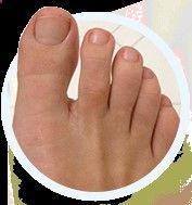 Nail Fungus Cure? Fungus: Nail fungus (particularly, toenail fungus) may quickly develop into a serious condition that spreads to other nails. Nearly 25% of people will experience nail fungus during their lifetime and struggle in search of a solution. Symptoms:…Read more › #ToenailFungusPeople