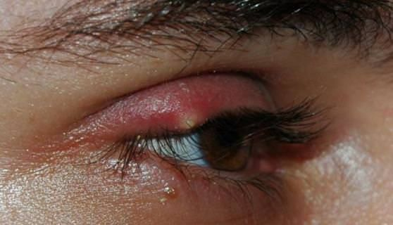 How to use home remedies for eye stye treatment naturally? Eye stye or pen is a typical infection, which is more inclined to influence young people. A...