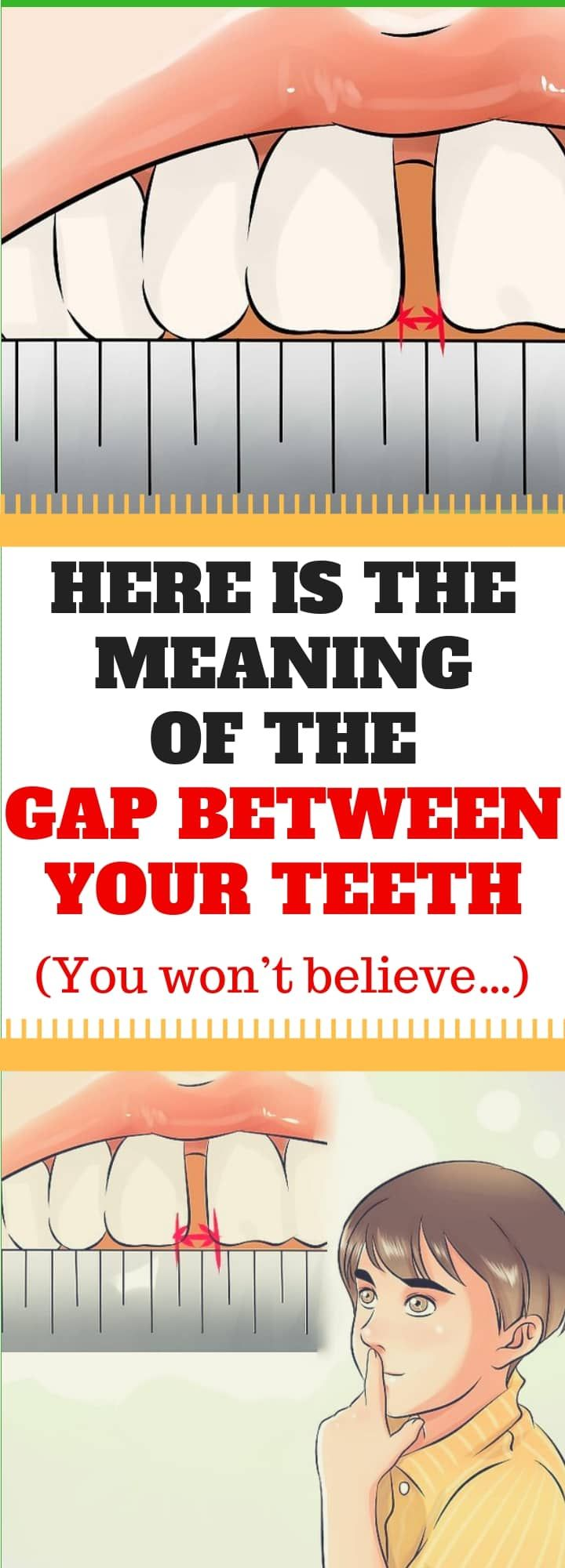 Here Is The Meaning Of The Gap Between Your Teeth! Gap