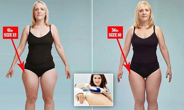 Резко Похудеть Бедра. Что делать для похудения бедер в домашних условиях?