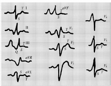 ЭКГ-картина в различных отведениях при остром легочном сердце