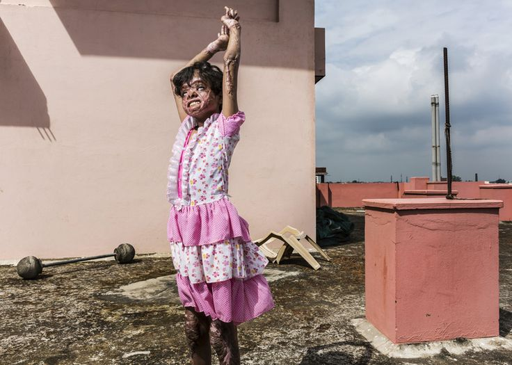 VARANASSI, INDIA, 2 OCTOBER 2013: Kumkum Chowdhary, 12, plays by herself on the roof of a small donor hospital in Varanassi, India. Kumkum is a victim of severe burns from a gas fire. India has one of the highest incidents of severe burns per capita yet has very few proper burns units throughout the country. Kumkum was severely burned when a naive boy in her village asked to hold a candle while he tried to transfer gas from one canister to another. He promised Kumkum a sweet if she would…
