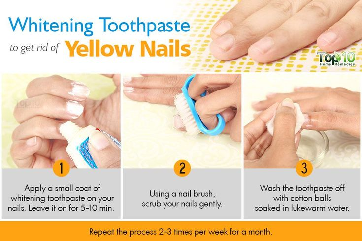 How to get rid of yellow nails top 10 home remedies