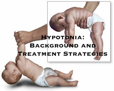 Dinosaur Physical Therapy - Hyptonia: Exercises to Help Your Baby with Low Muscle Tone | ilslearningcorner.com