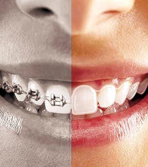 Ortodoncia invisible: Todo lo que necesitas saber