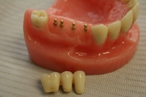 Dental Implants for getting better look with help of IndianHealthGuru