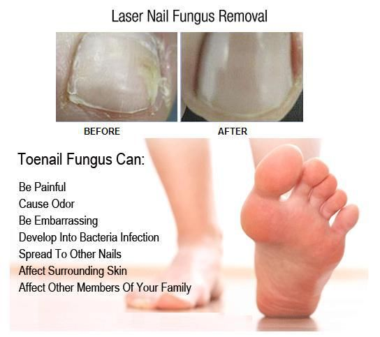 Get laser treatment to remove toenail fungus, because no bride should walk-around with ugly nails, specially not on their wedding day/night :-)