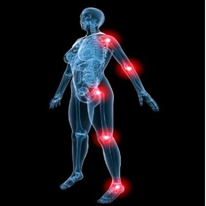 Natural Remedies For Psoriatic Arthritis