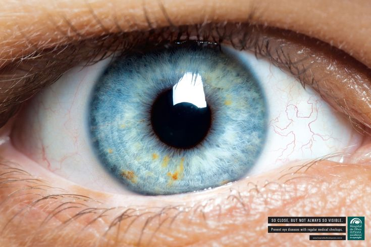 Hospital de Olhos do Paraná: Eye, 3