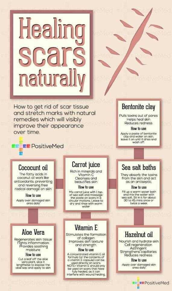 Natural remedies!