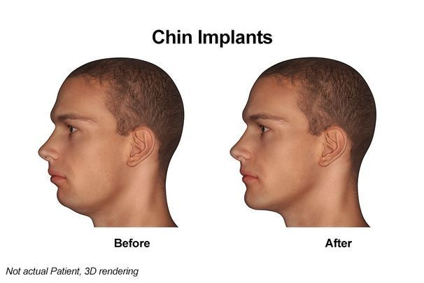 Chin Implant Cost – How Much Does a Chin Implant Cost