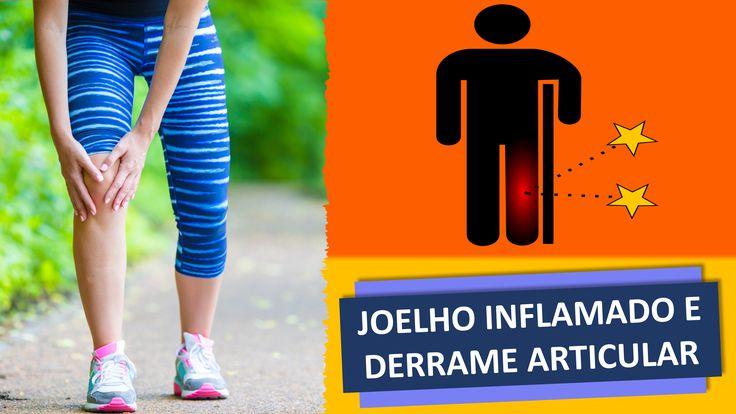 www.cirurgiadejoelho.med.br / O DR. ADRIANO KARPSTEIN, médico ortopedista especialista em Cirurgia de Joelho e Medicina Esportiva, explica sobre JOELHO INFLAMADO E DERRAME ARTICULAR. / #joelho #cirurgiadejoelho