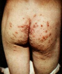 1919, Diseases of the skin. Scabies mites (now known as Scarcoptes scabiei), lesions caused by infection. Scabies is a very contagious parasitic skin infection, caused by a mite very closely related to the one that causes mange in animals. The primary symptoms are intense itching and lesions/hair loss where the mites have burrowed. The intense itching, swelling and oozinf of the wounds is caused by allergic reaction to the mite faeces.