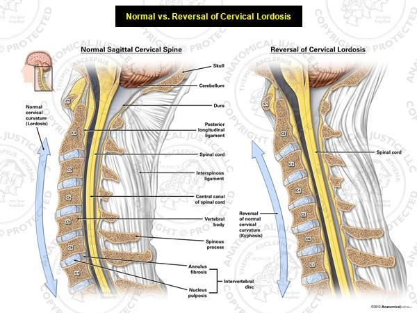 Reversal Of Cervical Lordosis | necessary for shock absorption. Reversal of cervical lordosis ...