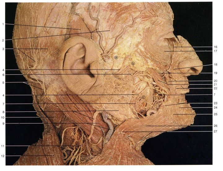 DIssection of mimic muscles, blood vessels and nerves of the human face. You can easily see that the facial nerve goes its way through the Glandula parotidea to divide into its branches.