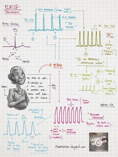 La Chuleta de Osler: Cardiología - EKG: Taquicardias (Orientativo)