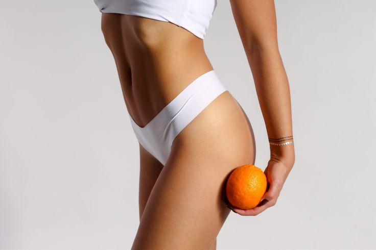 Számoljatok le a narancsbőrrel! Legújabb blogbejegyzésünkben a cellulitisz elleni hatékony praktikákról olvashattok!