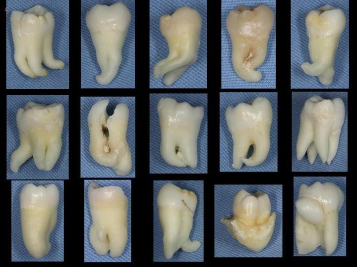 It's more like Molar DANCE!! Make these into a flip book & voila! Molar Dance! MOLAR RAIZ   (from VidaDeDentista.com)