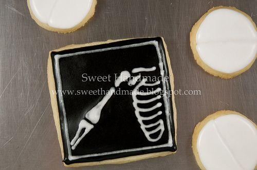 Broken Bone X-Ray cookie: Medical Sugar Cookies, Medical Cookies, Decor Cookies, Xray Sugar Cookies, Bones X Ray, Broken Bones, Ice Cookies, Bones Cookies, Halloween Cookies