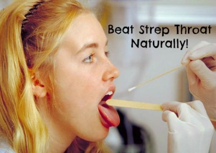 Natural remedies for beating strep throat faster and better than with antibiotics.
