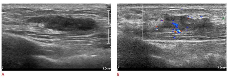 Ruptured mass in the subclavicular area in a 23-year-old woman. A. Ultrasonography (US) shows an irregularly marginated hypoechoic lesion mainly located in the left subclavian subcutaneous tissue layer. B. On Doppler US, blood flow looks increased in and at the periphery of the mass. The mass was diagnosed as a ruptured epidermal inclusion cyst.